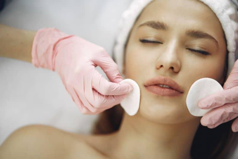 tratamientos cuidar puntos negros acne